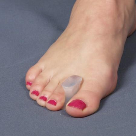 Удаление косточки на ноге лазером цена спб